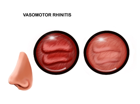 Allergic or vasomotor rhinitis: