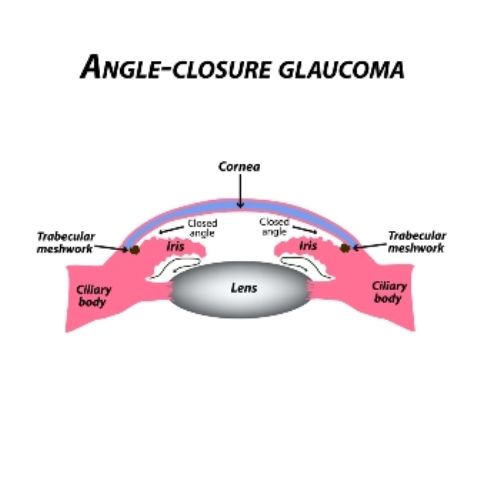 Angle-closure glaucoma: