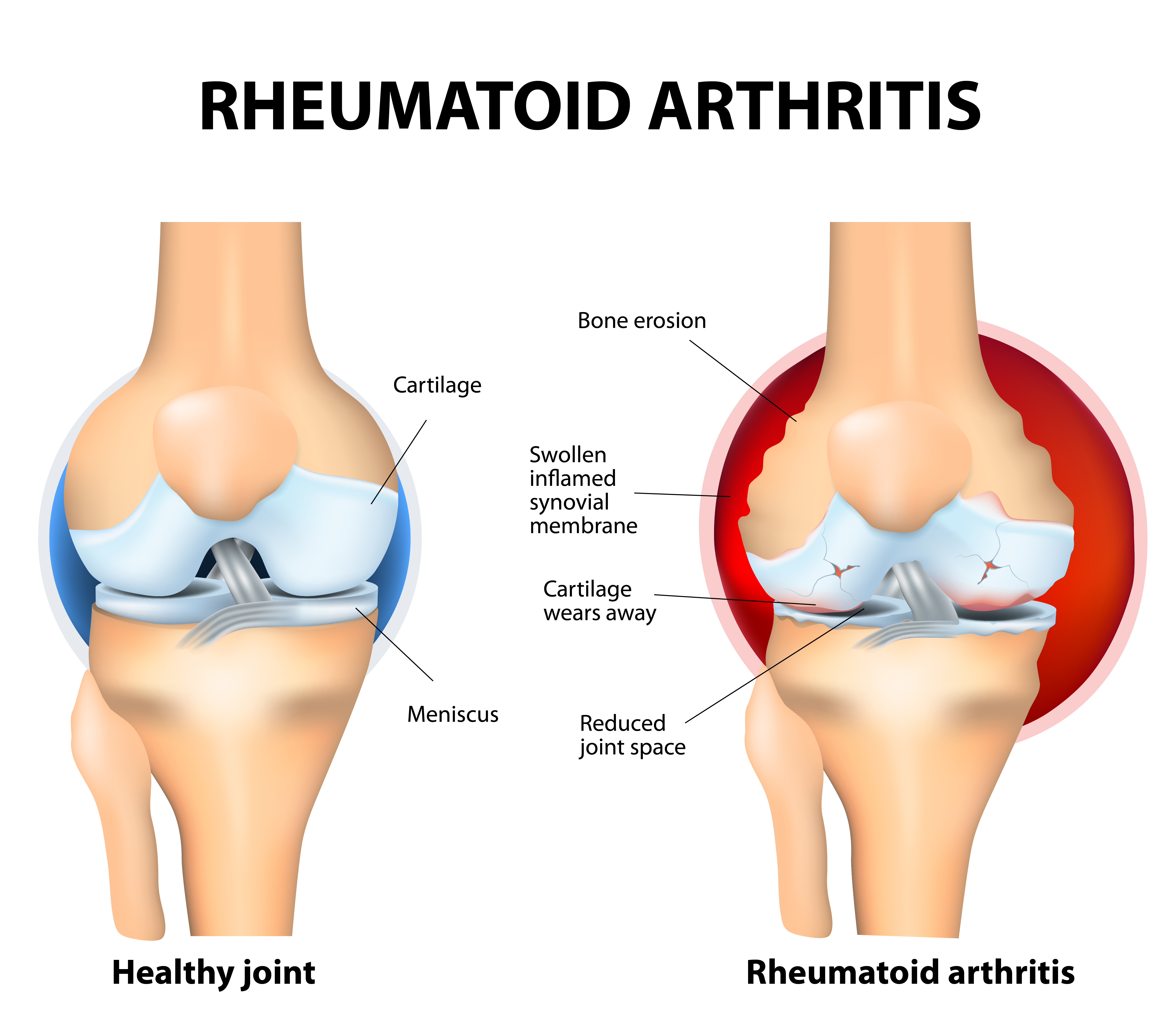 Arthritis rheumatoid (atrophic) as an active process