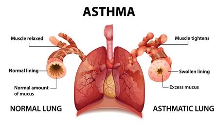 Asthma, bronchial: