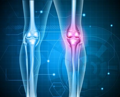 Bones, of the lower extremity, shortening of: