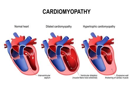 Cardiomyopathy:
