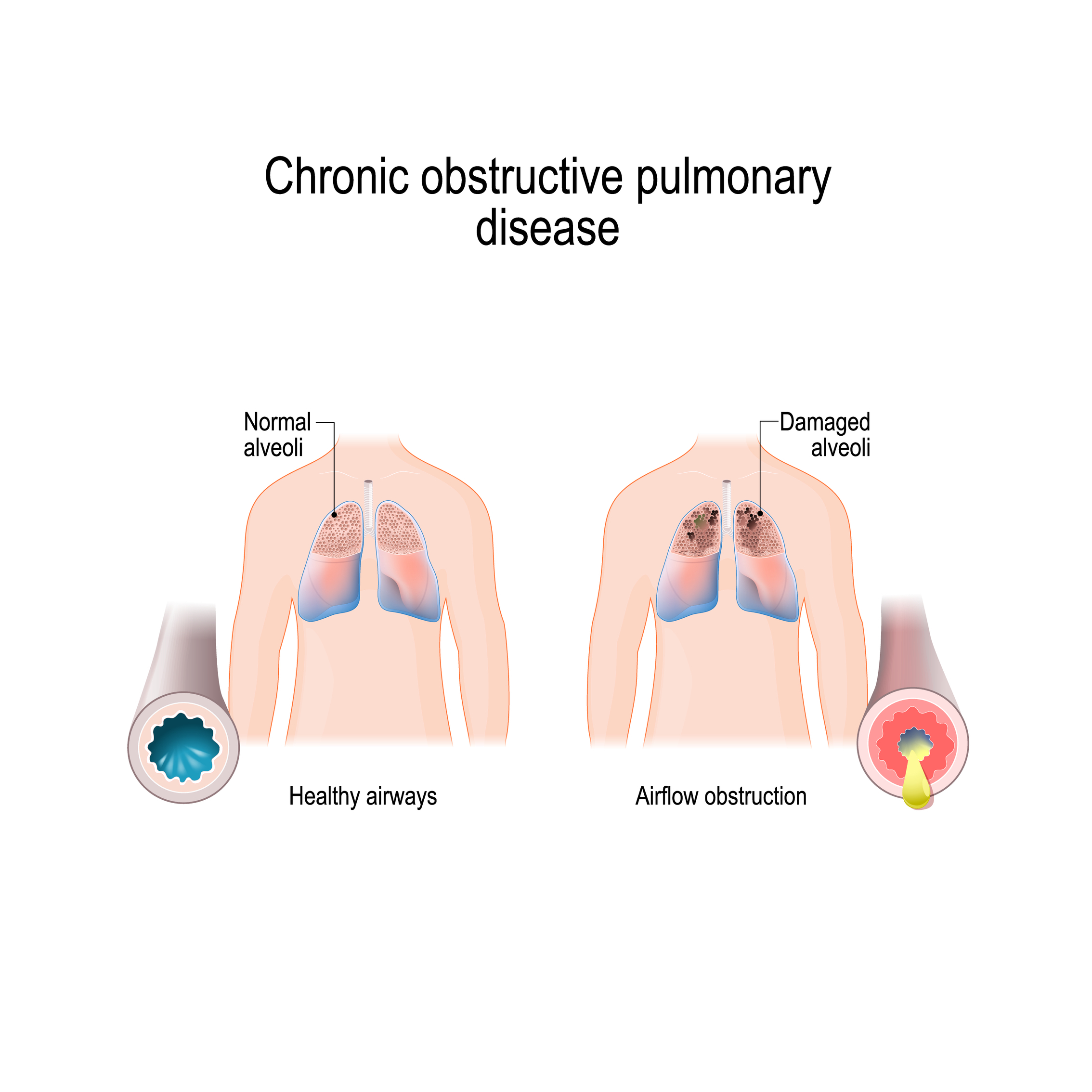 Chronic obstructive pulmonary disease: