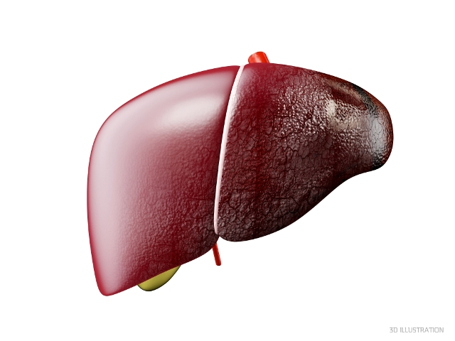 Cirrhosis of the liver, primary biliary cirrhosis, or cirrhotic phase of sclerosing cholangitis: