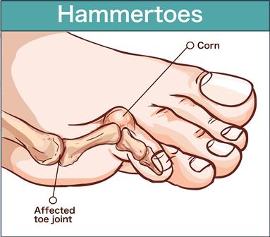 Hammer toe: