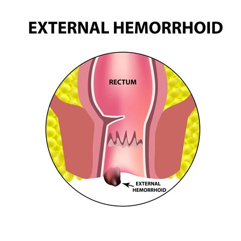 Hemorrhoids, external or internal: