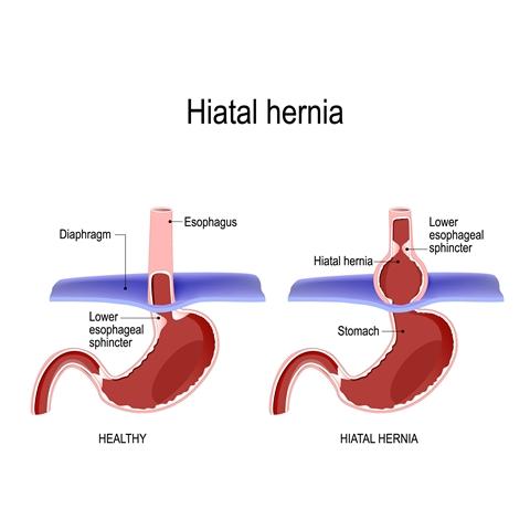Hernia hiatal: