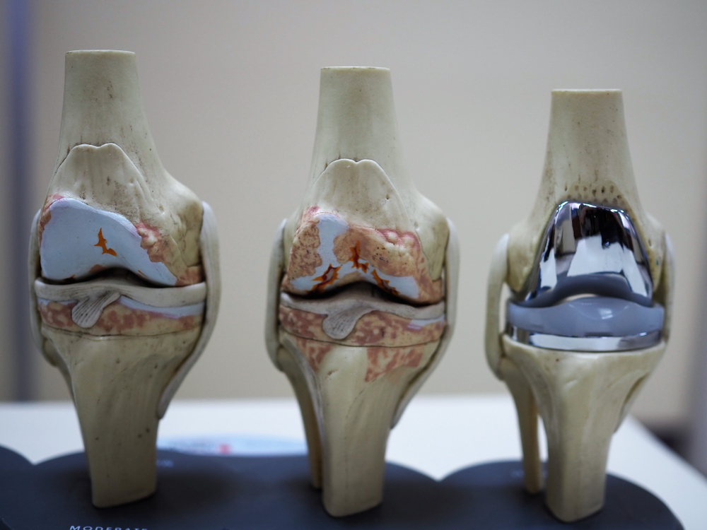 Knee replacement (prosthesis)