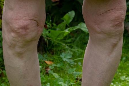 Leg, limitation of flexion of:
