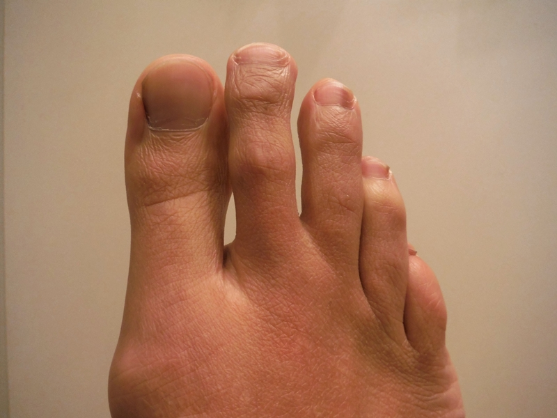 Metatarsalgia, anterior (Morton's disease), unilateral, or bilateral