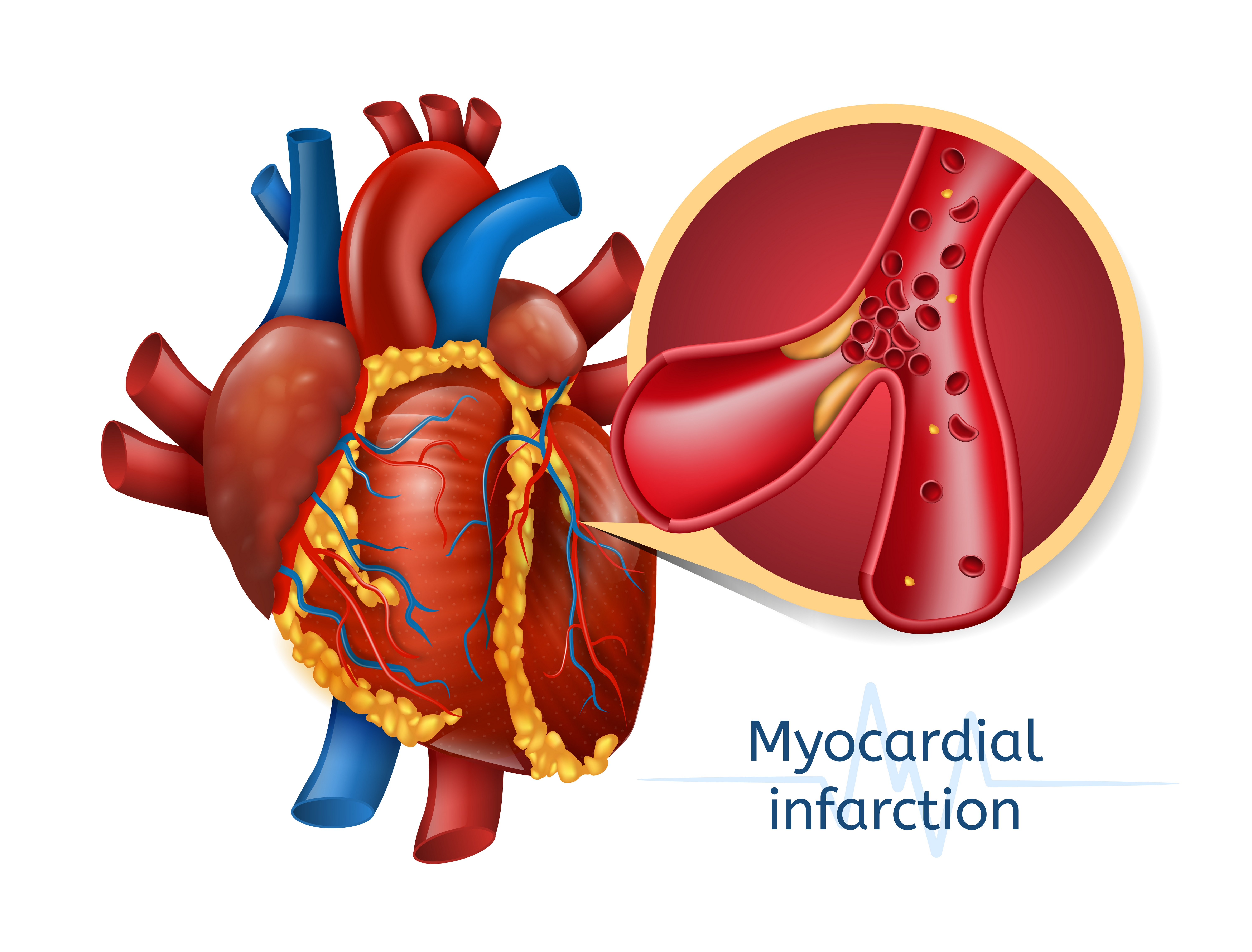 Myocardial infarction: