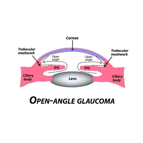 Open-angle glaucoma: