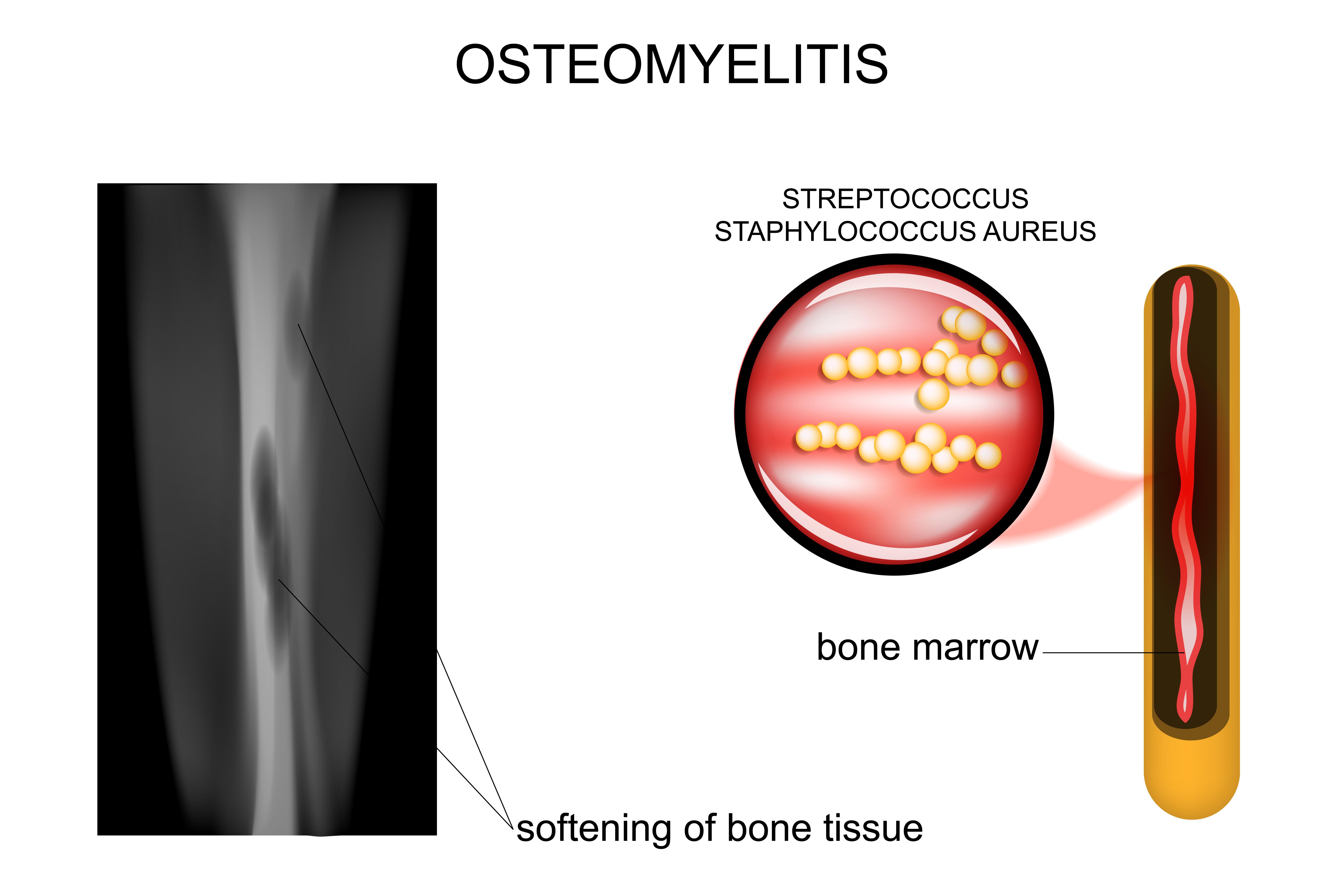 Osteomyelitis & acute chronic
