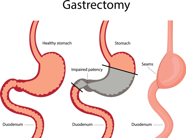 Postgastrectomy syndromes: