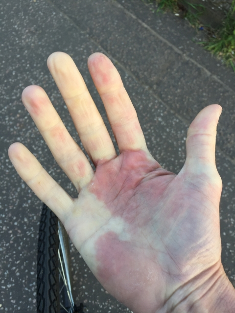 Raynaud's syndrome: