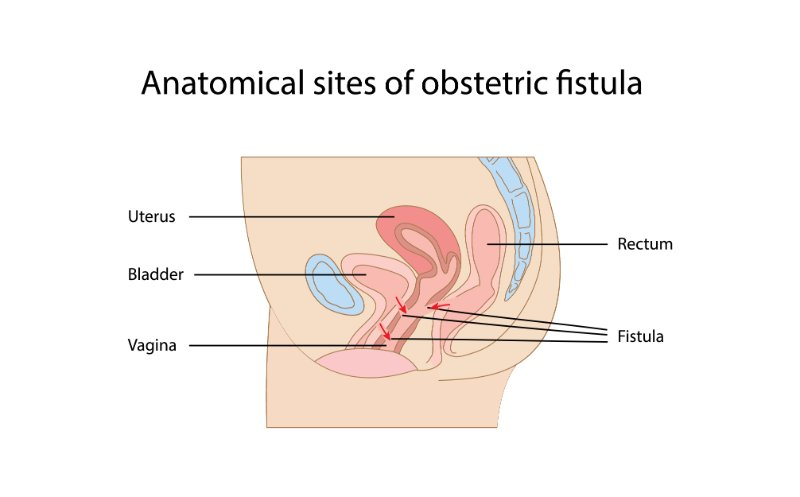 Fistula  rectovaginal