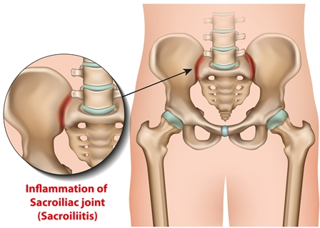 Sacroiliac Injury And Weakness