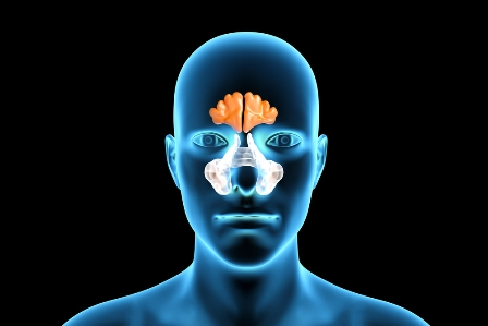 Sinusitis, ethmoid, chronic