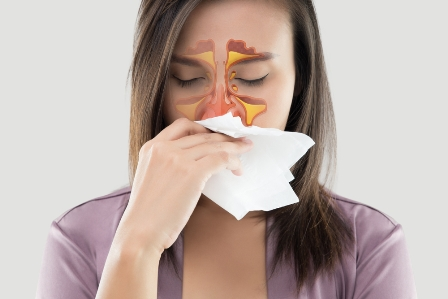 Sinusitis, pansinusitis, chronic