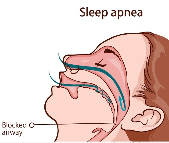 Sleep Apnea Syndromes (Obstructive, Central, Mixed):