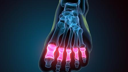 Tarsal, or metatarsal bones, malunion of, or nonunion of: