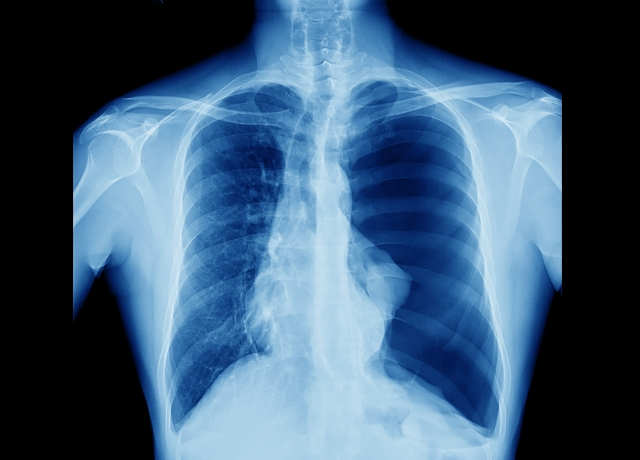 Traumatic Chest Wall Defect