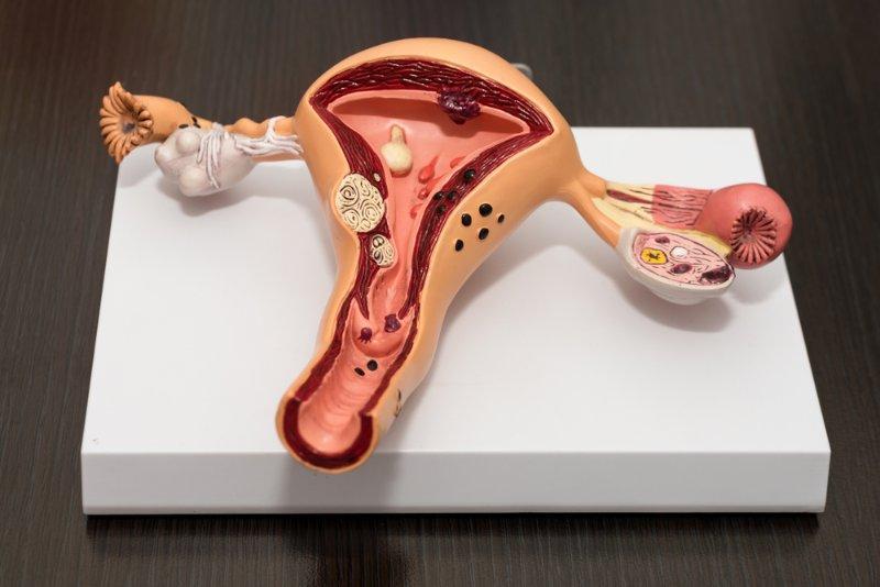 Uterus, removal of, including corpus: