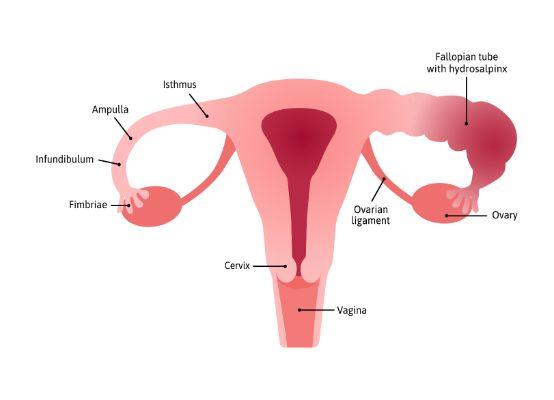 Vagina, disease or injury of