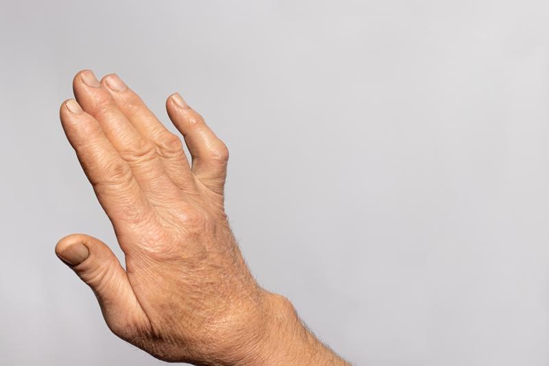 Wrist, Ankylosis